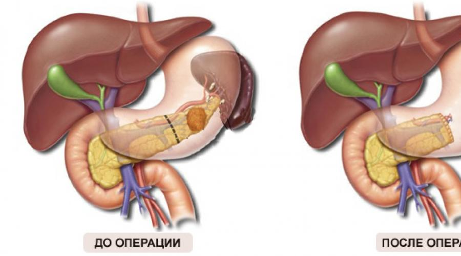 blužnies hipertenzija